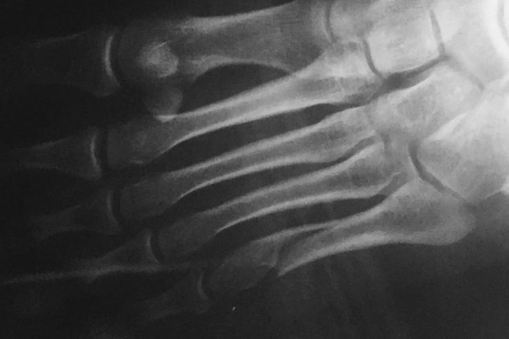 radio dune fracture du pied