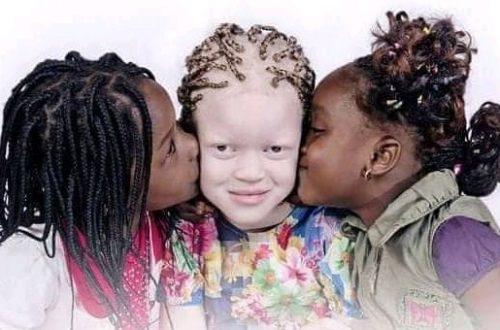 Article : Albinos du monde entier, vous êtes «faits pour briller» !